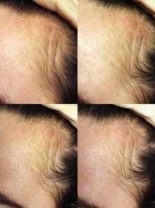 Dermanaalden haargroei haargroeien
