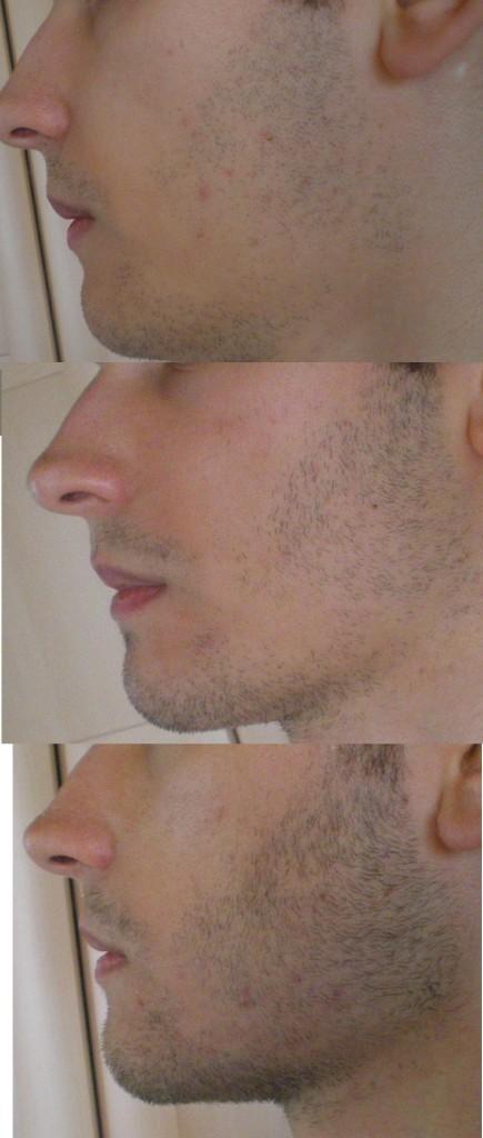 middel voor baard groei