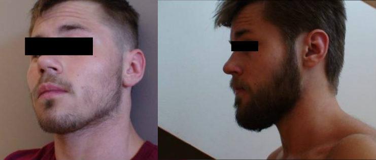 Regaine gezichtsbeharing resultaten voor en na